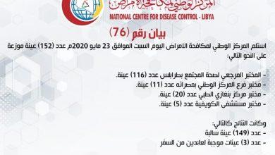 Photo of المركز الوطني لمكافحة الأمراض يعلن نتائج آخر تحاليل فيروس (كورونا) وتسجيل لحالات موجبة عائدة من السفر