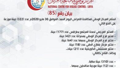 Photo of المركز الوطني لمكافحة الأمراض يعلن نتائج آخر تحاليل فيروس (كورونا) ومزيد من الحالات الموجبة لمخالطين