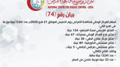 Photo of المركز الوطني لمكافحة الأمراض يعلن نتائج آخر تحاليل فيروس (كورونا) وتسجيل لحالات موجبة عادت من السفر