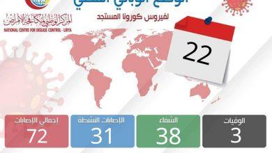 Photo of الوضع الوبائي المحلي ليوم الجمعة 22 مايو 2020