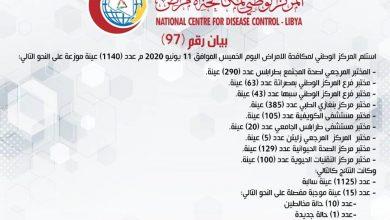 Photo of المركز الوطني لمكافحة الأمراض يعلن نتائج آخر تحاليل فيروس (كورونا) وتسجيل (15) حالة موجبة