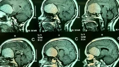 Photo of عملية تستغرق (9) ساعات لإزالة ورم من رأس مريضة