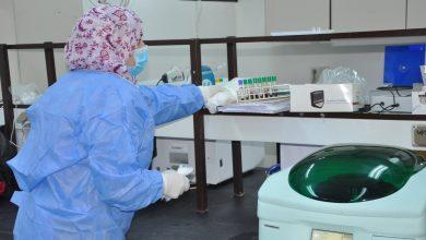 Photo of (2.5) مليون اختبار بمختلف التخصصات يجريها مختبر المستشفى الجامعي طرابلس سنوياً