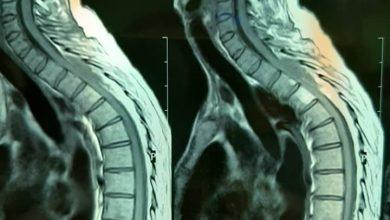 Photo of عملية جراحية مستعجلة لاستئصال ورم في محيط الحبل الشوكي لمريضة عمرها (42) عاما