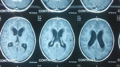Photo of نجاح عمليات جراحية دقيقة لاستئصال كتل ورمية من الدماغ لمريضين