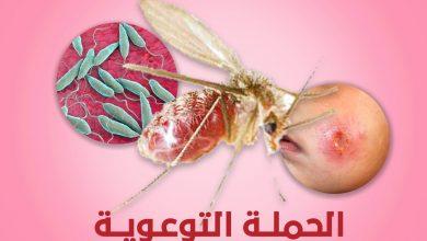 Photo of المركز الوطني لمكافحة الأمراض يطلق الحملة التوعوية حول داء (اللشمانيا)