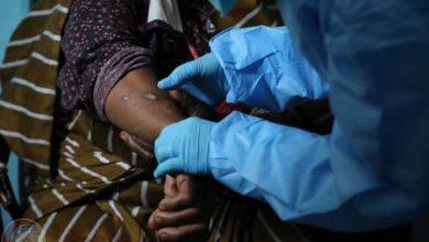 Photo of فريق طبي تابع لإدارة مكافحة الأمراض المشتركة يزور مخيم تاورغاء بمنطقة الفلاح بطرابلس